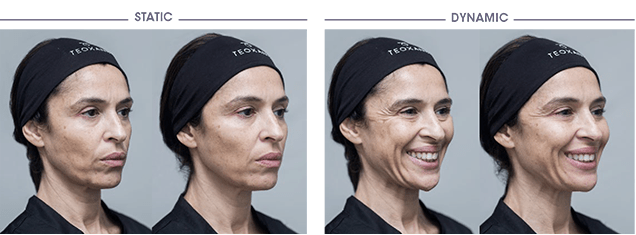 Multilayering - Before and after Courtesy of Dr. Patrick TREVIDIC