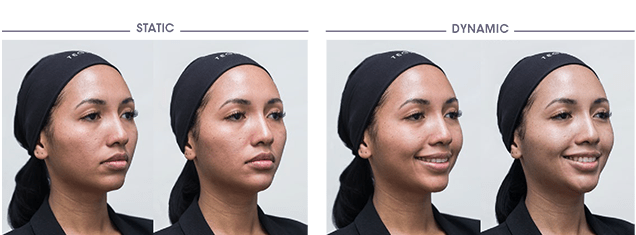 Multilayering - Before and after Courtesy of Dr. Sandrine SEBBAN